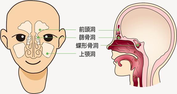蓄膿症 匂い